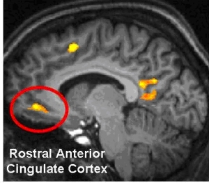 Anterior cingulate cortex, right behind the nose. (Image credit)