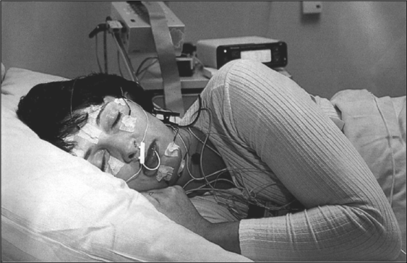 A woman during a sleep test. (Photo credit)