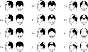 Male pattern baldness, and I'm a classic case of it. (Image source)