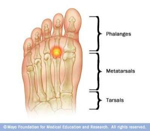 Image of selected bones of the foot. My injury was where the circle is. (Source)